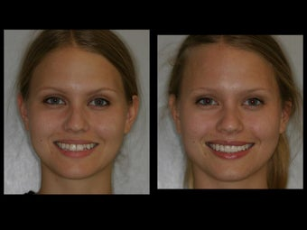 Smile Makeover with Veneers and Teeth Whitening