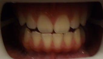 Zoom Teeth Whitening Before and After Photos