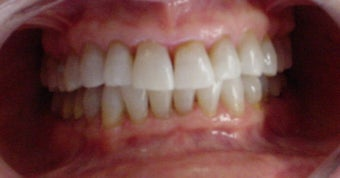 whitening tetracycline stained teeth