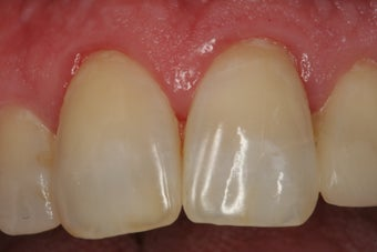 Internal Bleaching of Non-Vital Tooth