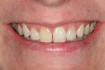 Whitening a single anterior tooth