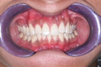 Whitening and Invisalign