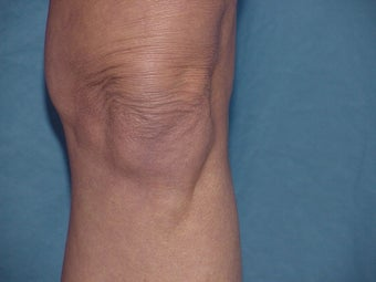 Thermage of knee before