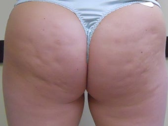 Thermage for Cellulite