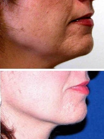 Thermage to jaw line and chin