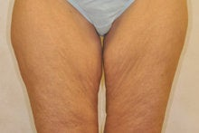 Medial (Inner) Thigh Lift