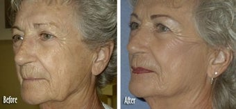 Threadlift to full face for jaw and neck definition