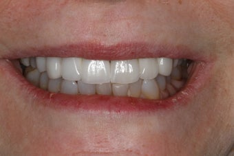 Cosmetic Dentistry - Fixed Bridge