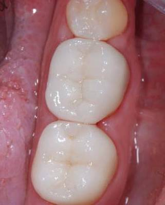 Mercury fillings replaced by white tooth colored fillings
