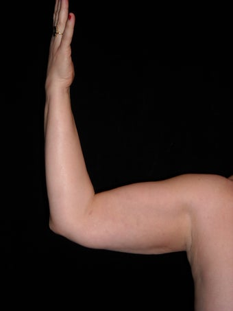 Liposuction of upper arm