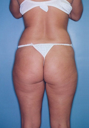 Power Assisted Liposuction (Hips, Thighs, Stomach & Back)