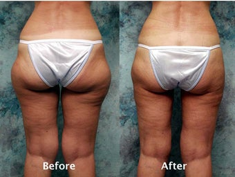 Inner and outer thigh liposuction