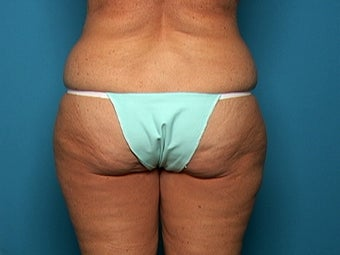 Liposuction after Age 50