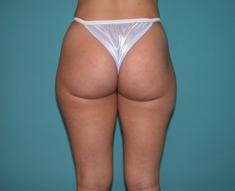Liposuction of flanks and outer thighs