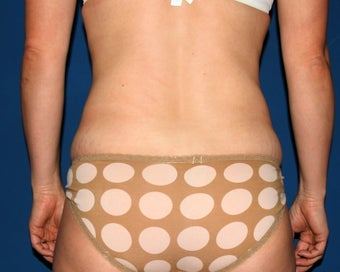 Liposuction of the Back and Abdomen