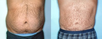 Male Stomach & Love Handles Lipo