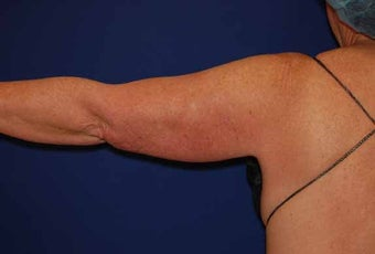 Liposuction Upper Arm