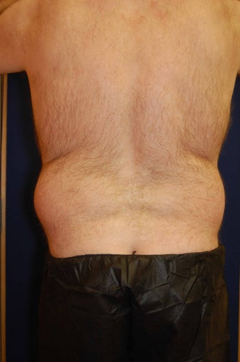 Liposuction of Waist