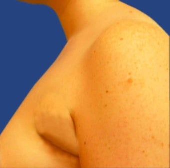 Liposuction of Underarm Area