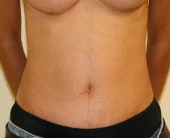 Abdominoplasty Revision