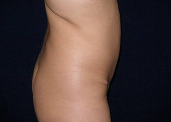 Tummy Tuck Revision