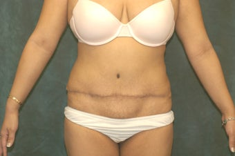 Women's Tummy Tuck Revision