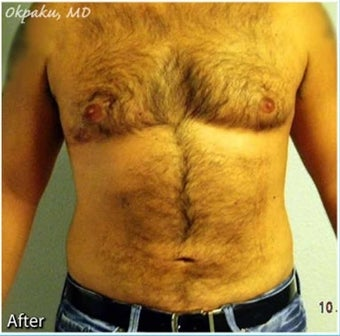 Male Liposuction of Abdomen and flanks