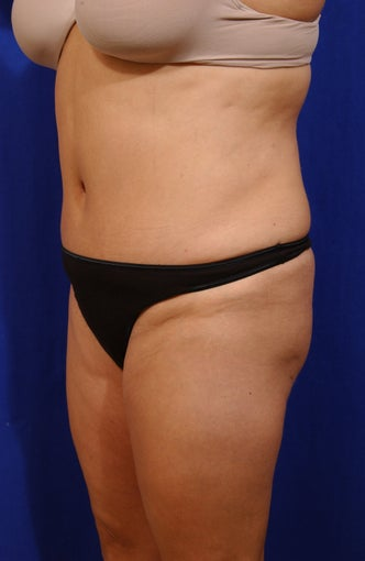 Abdominoplasty with liposculpture of abs, flanks, and waist