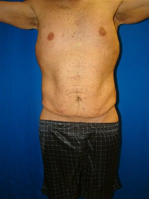 Male Tummy Tuck Surgery (abdominoplasty) Solana Beach, California