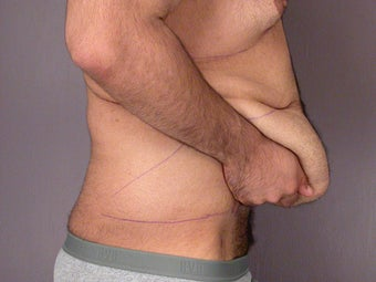 After Weight Loss Male Tummy Tuck