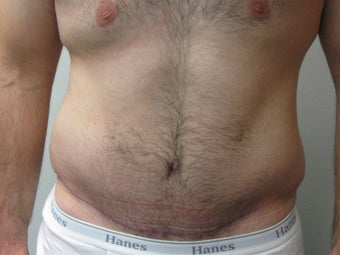 Abdominoplasty on 24 year old man