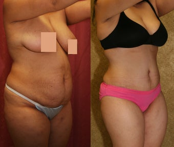 abdominoplasty- tummy tuck