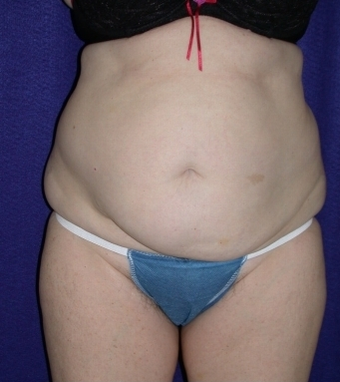 Tummy Tuck (abdominoplasty)