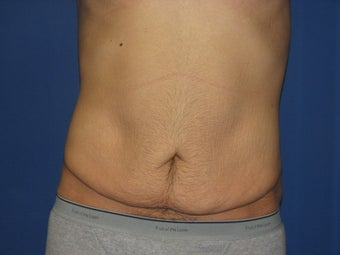 Male Tummy Tuck
