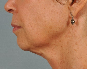 Ultherapy ~ lifting AND tightening for facelift results.