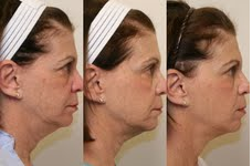 Ultherapy of the Full Face
