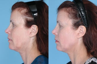 Ulthera Full Face and Neck