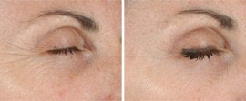 Ultherapy of Eyes and Neck