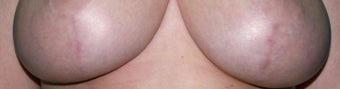 Laser treatment for breast implant scars