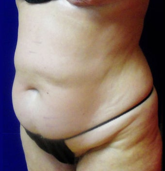 VASER Shape to Abdomen