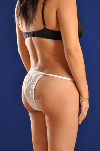Vaser Hi Def Liposuction of the back and flanks with fat injections to the buttocks