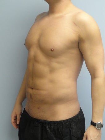 VASER Liposuction (HiDef)