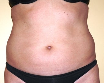 Ultrasonic assisted (VASER) Liposuction