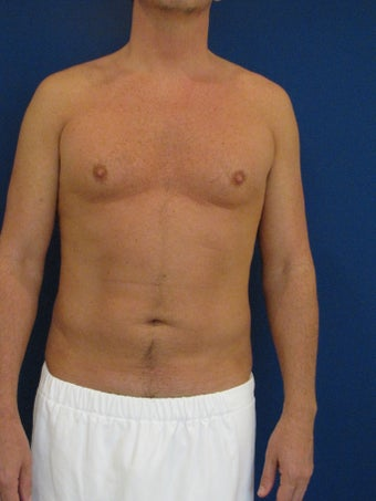 Vaser Hi Def Liposuction