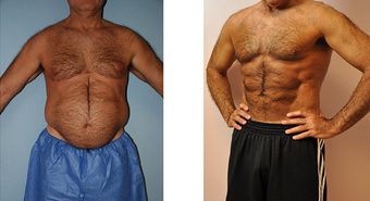 VASER Hi Def Liposuction (LipoSculpture)