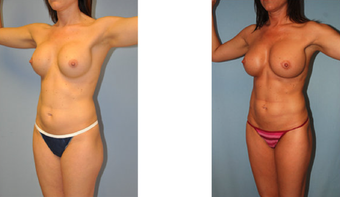 Vaser Hi Def LipoScuplture (Liposuction)