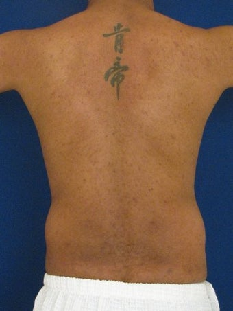 Vaser Hi Def Liposuction of the abdomen, chest, back, and flanks with fat injections to the pectoralis region
