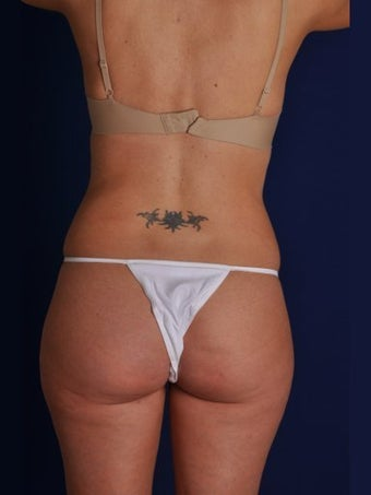 Vaser Hi-Def Liposuction of the back, flanks, medial and lateral thighs