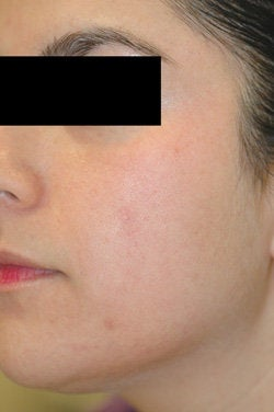 Facial Spider Vein Removal