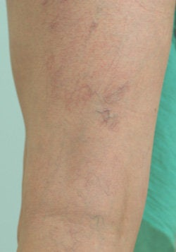 Laser Treatments for Spider Veins